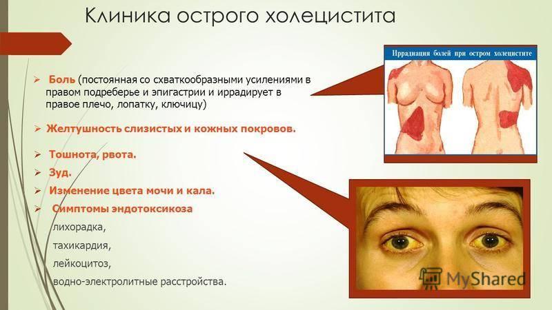 обезболивающие при холецистите