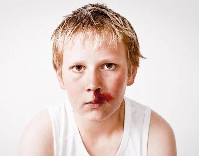 Причины носового кровотечения у подростков