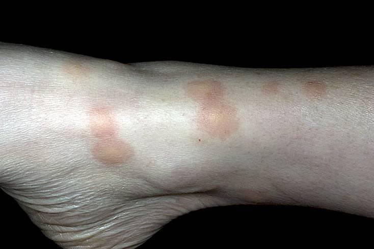 дерматит укус насекомого