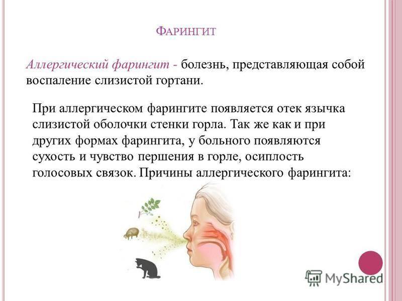 Основные причины развития аллергического фарингита