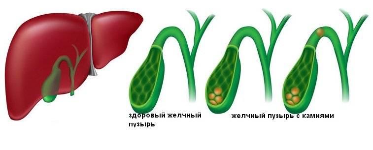 Признаки острого холецистита и эффективные методы лечения