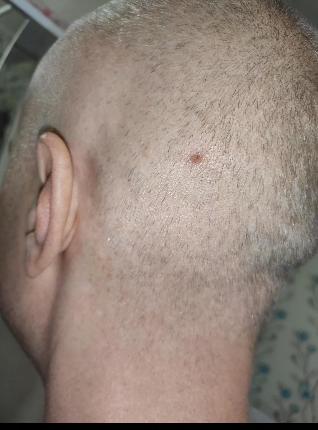 Демодекоз головы | eurolab | дерматология