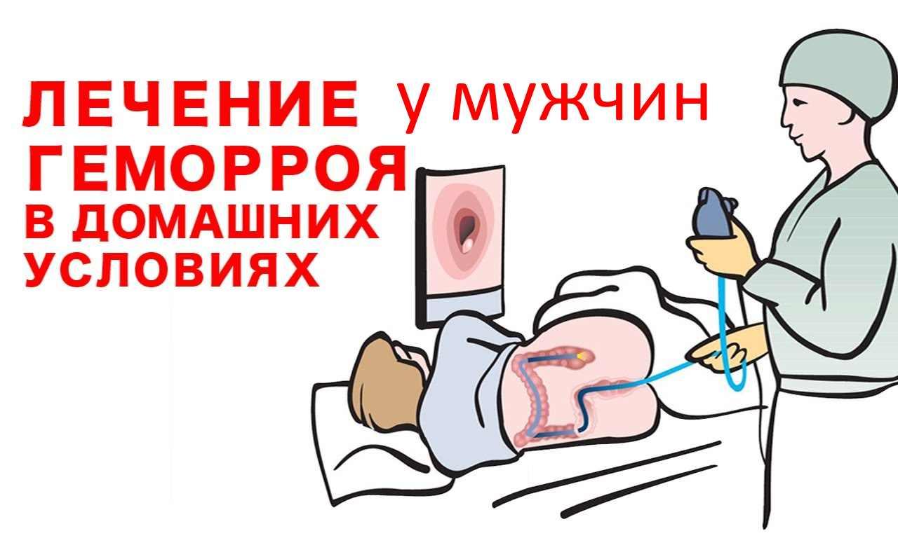 Народные способы лечения геморроя у мужчин