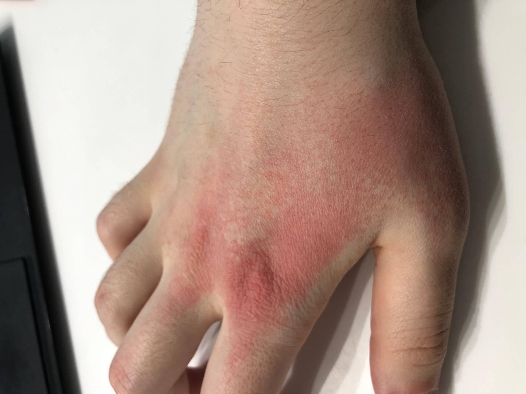 дерматит на ладонях лечение