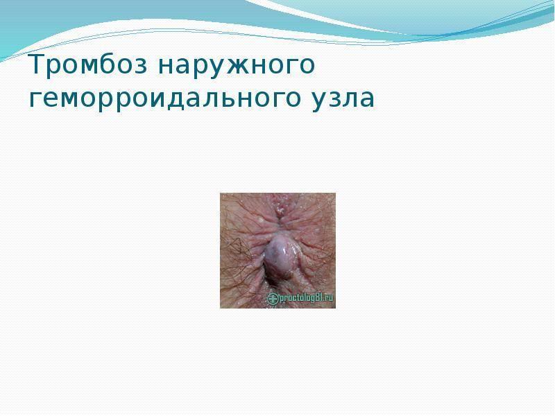 Наружный геморроидальный тромбоз. осложнение геморроя