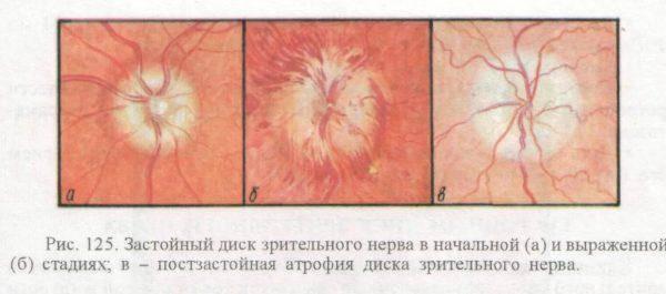 Причины отека диска зрительного нерва