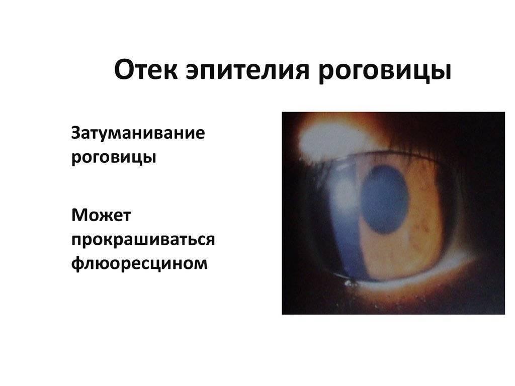 Как убрать отек роговицы после операции катаракты