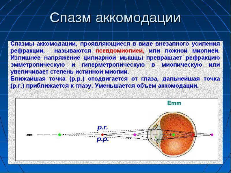 Спазм глаза – лечение аккомодации каплями у взрослых