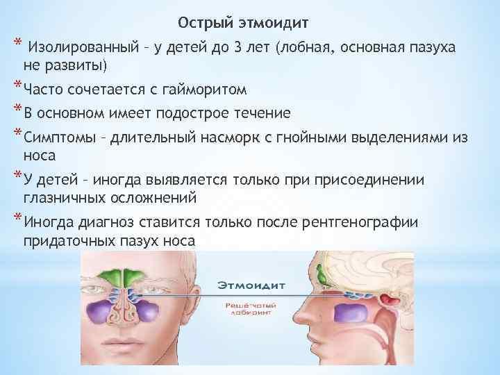 этмоидит симптомы лечение