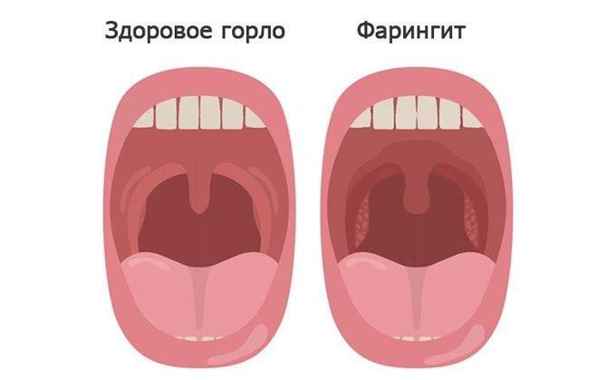 Комаровский фарингит у грудничка