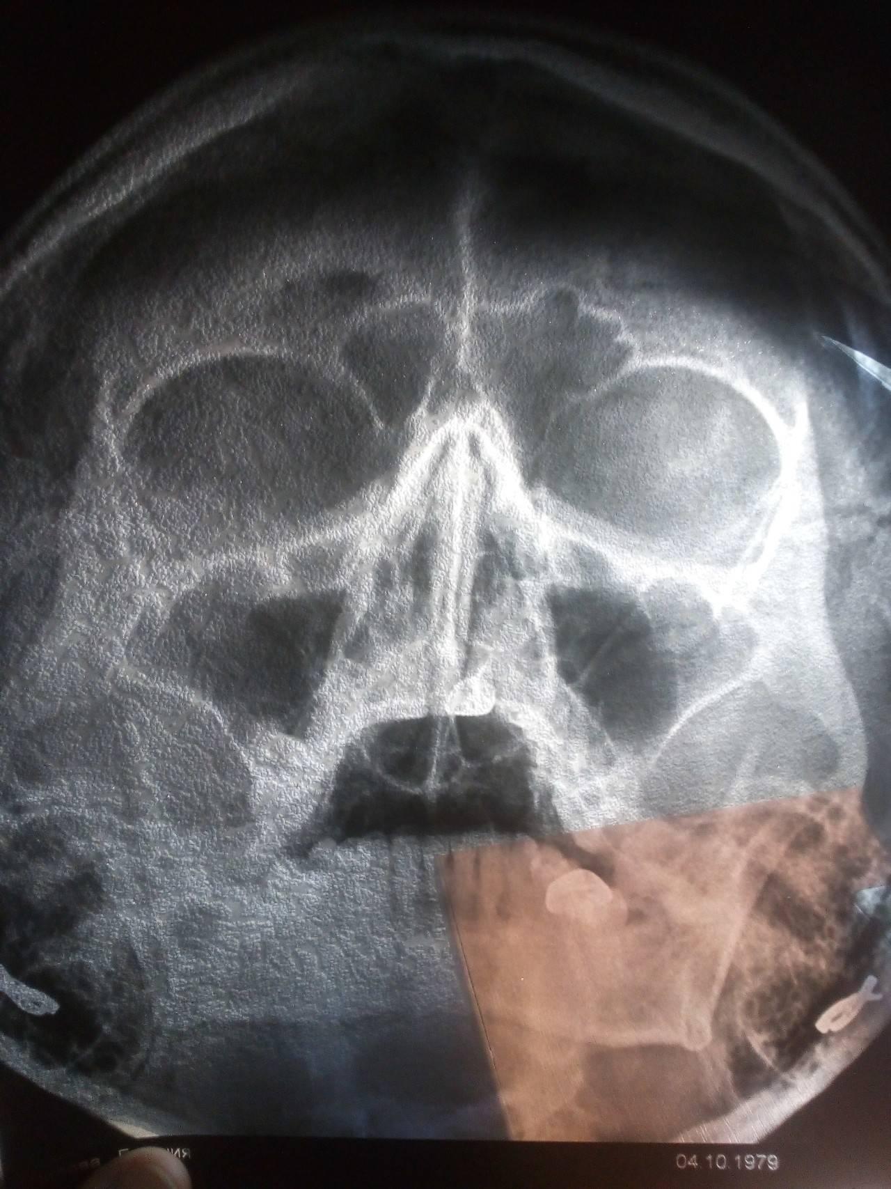 Сделать рентген пазух носа в москве: доступные цены.
