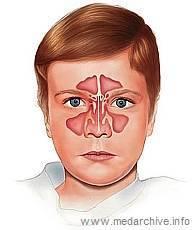 Синусит у детей: симптомы и лечение, что это такое, фото, видео