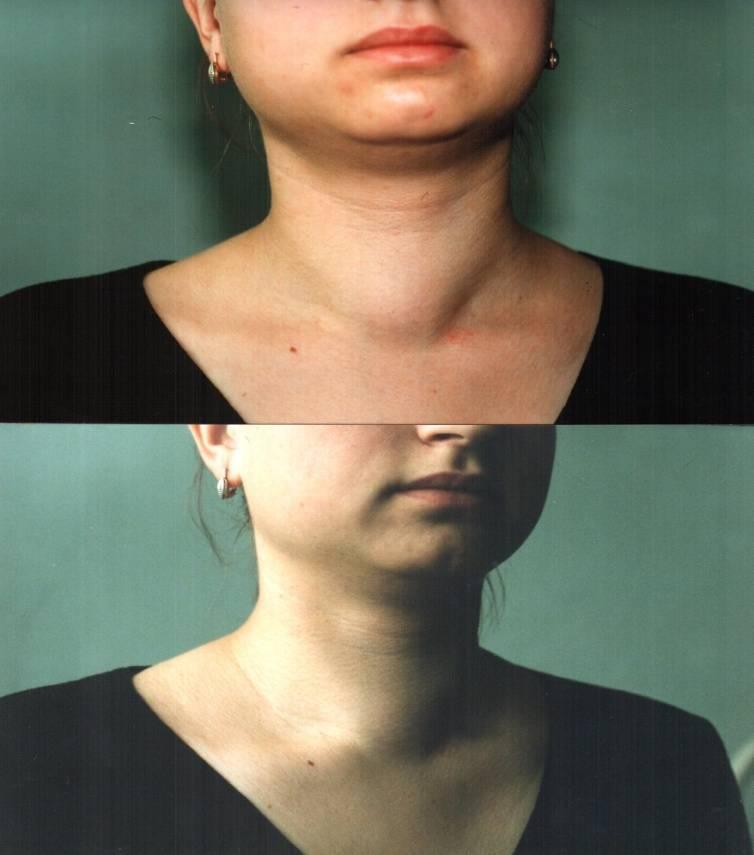 Способы лечения и последствия нарушения гормональной секреции щитовидной железы