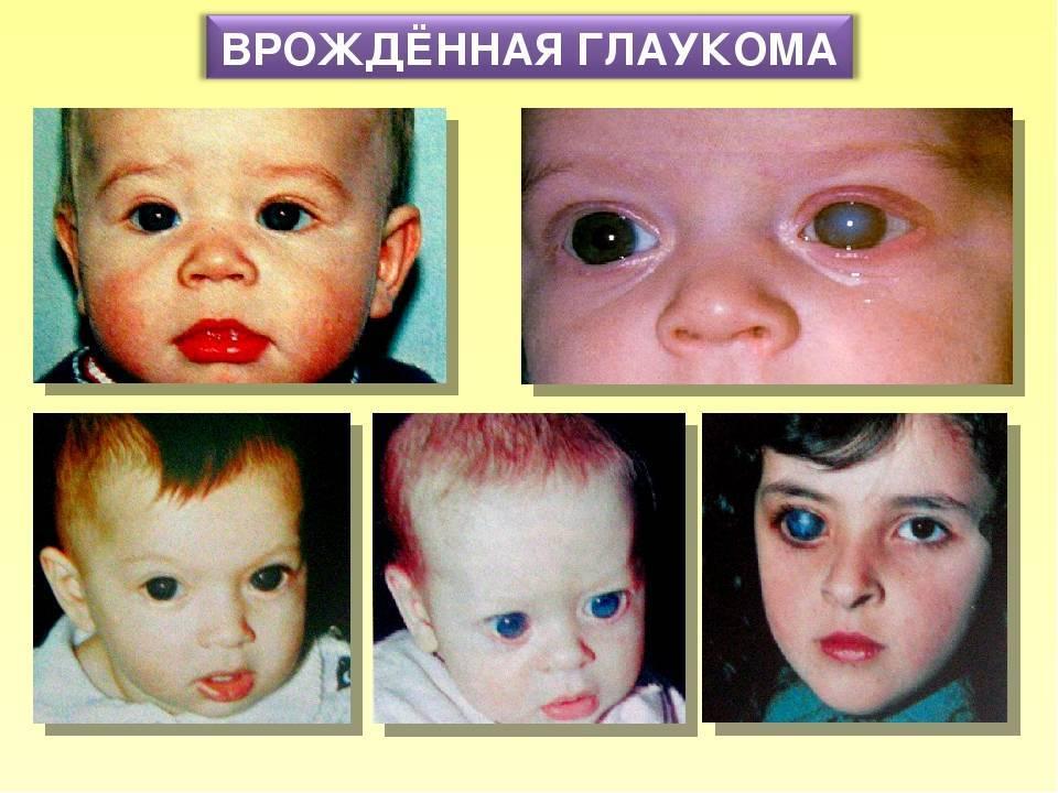 Лечение врожденной и приобретенной глаукомы у детей, от новрожденных до подростков