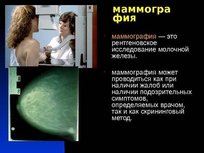 маммография с какого возраста делается