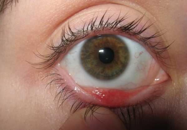 Киста глаза или киста глазного яблока, причины и способы лечения