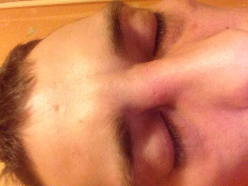 Фурункул в носу - причины, первые симптомы, диагностика и как правильно лечить