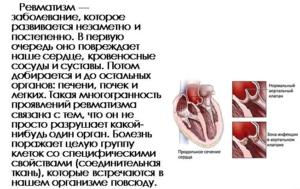 ангина и сердце