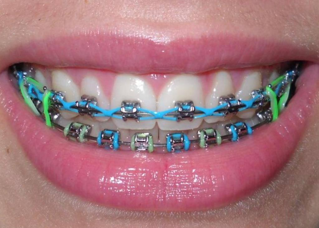 Керамические брекеты: фото на зубах, стоимость, установка системы, до и после самолигирующей керамики, сколько стоят прозрачные
