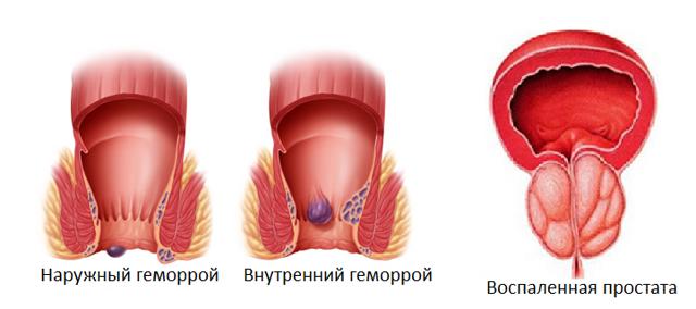 геморрой и простата