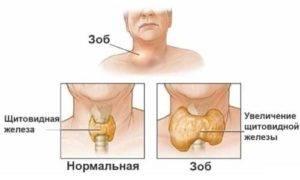 щитовидная железа капсула уплотнена