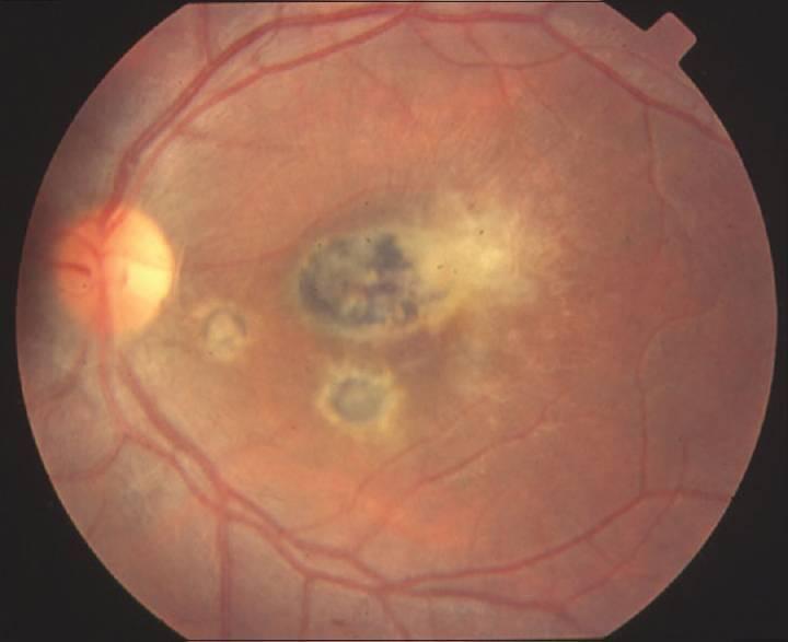 Хориоретинит глаза (задний увеит): что это такое и можно ли вылечить