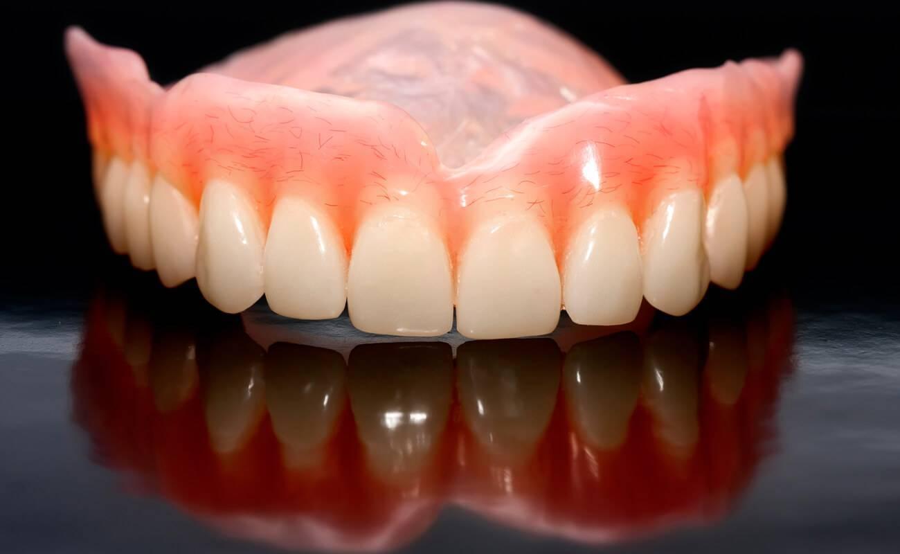 лучшее протезирование зубов