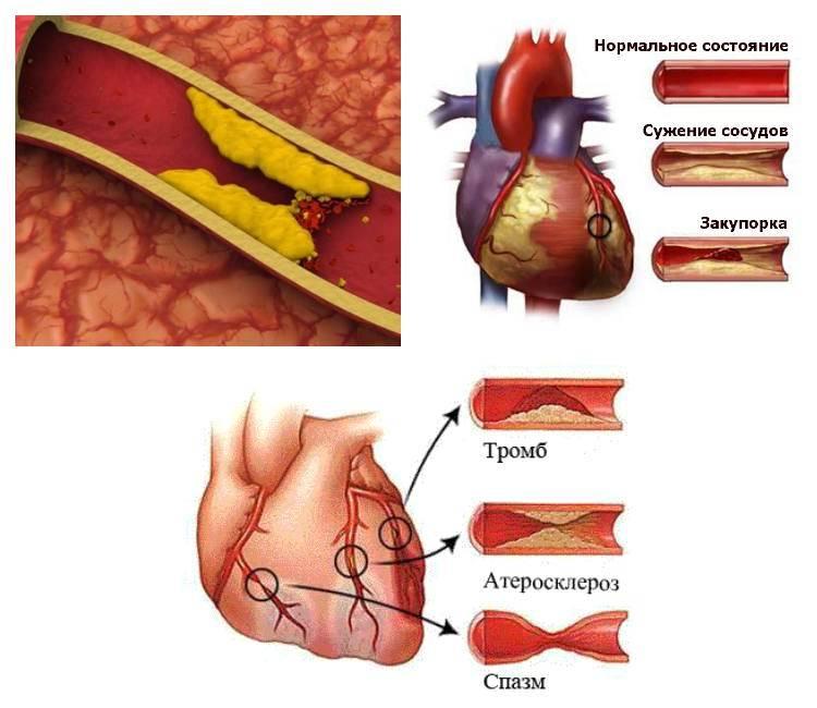 Эффективные способы очищения сосудов от холестериновых бляшек