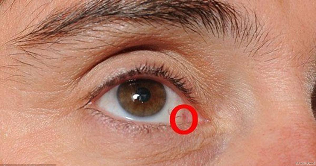 рак века глаза