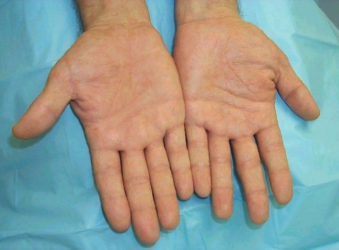 Народное лечение псориаза в домашних условиях