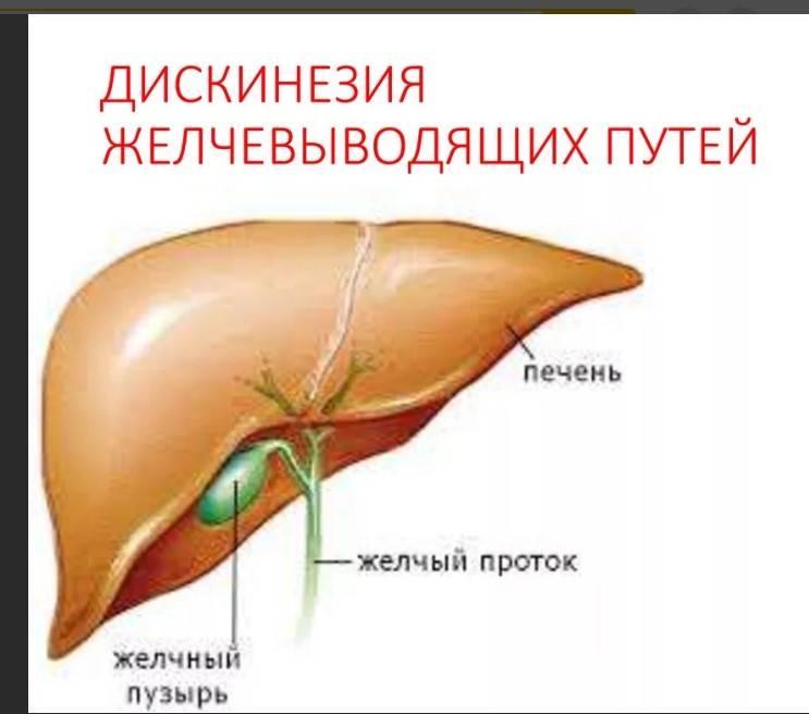 гипокинетическая дискинезия желчного пузыря