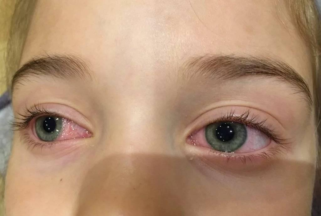 Зачем человеку моргать глазами — симптомы