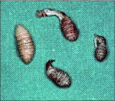 личинки мух в теле человека