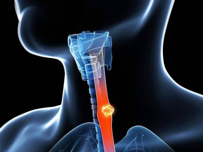 плоскоклеточный рак гортани 3 степени
