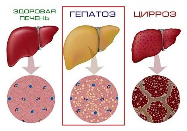 лечение жирового гепатоза народными средствами
