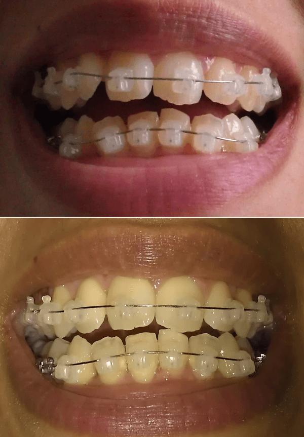 Шокирующая информация: почему после брекетов зубы разъехались и стали кривыми?