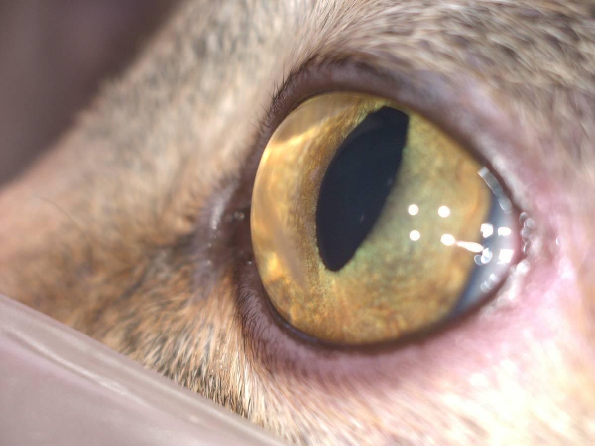 Отек роговицы глаза: причины, диагностика и лечение