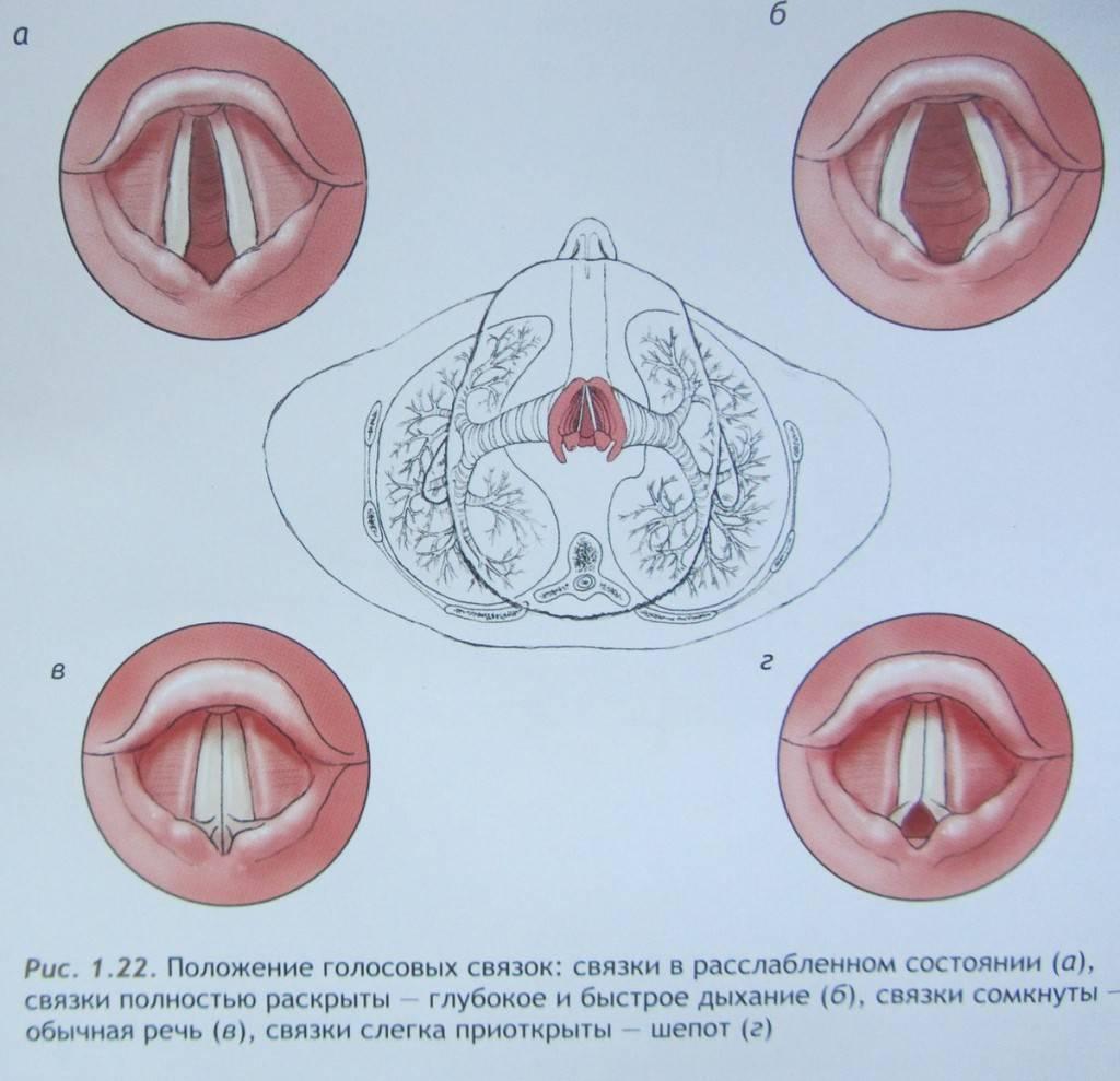 Певческие узелки на голосовых связках