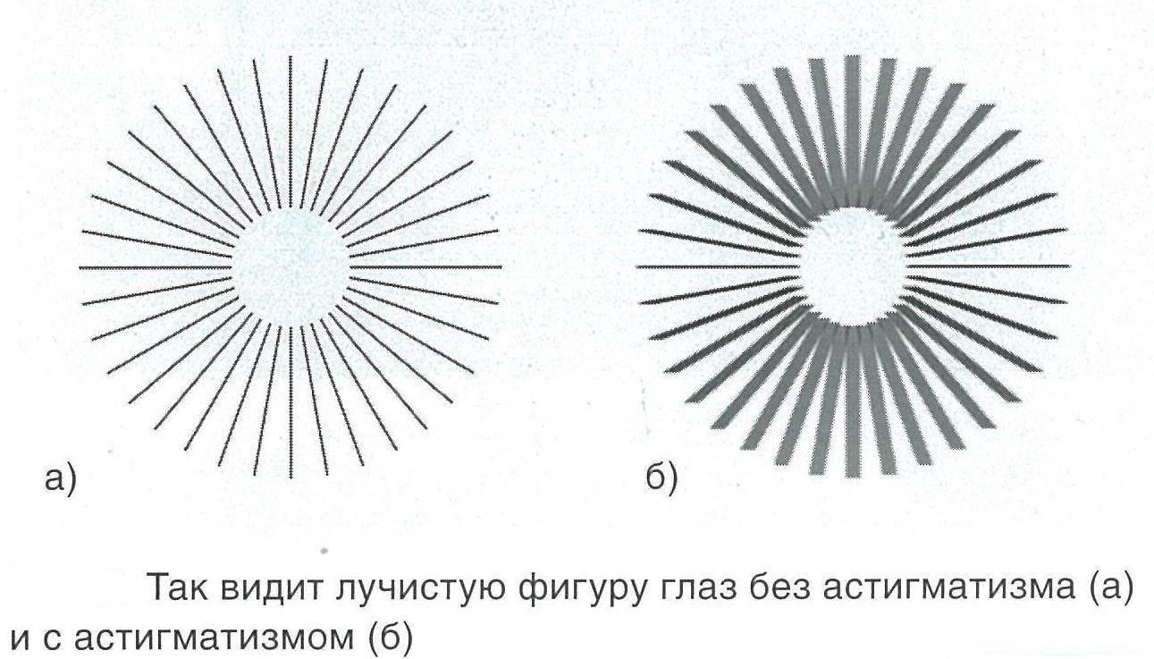 астигматизм диагностика