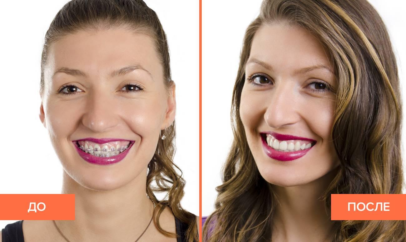 Причины дискомфортных ощущений и уход за зубами после установки и снятия брекет-системы