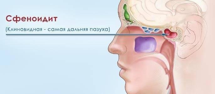 сфеноидит симптомы