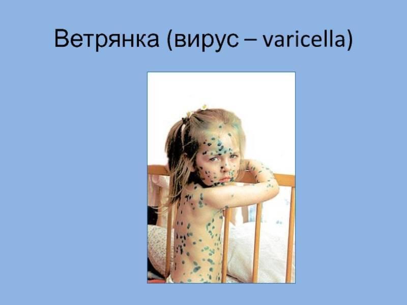 Ветрянка или герпес 1 типа? - запись пользователя жанна (id1097575) в сообществе здоровье - от трех до шести лет в категории вирусные инфекции - babyblog.ru