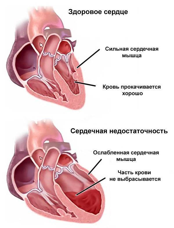 таблетки от сердечного кашля