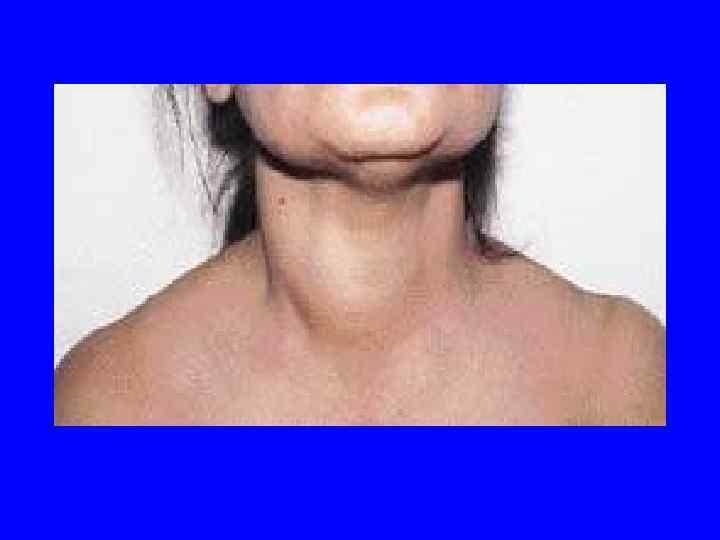 Гиперплазия щитовидной железы размеры: