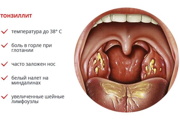 Тонзиллит лечение в домашних условиях