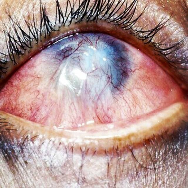 Ожоги глаза и его вспомогательных органов