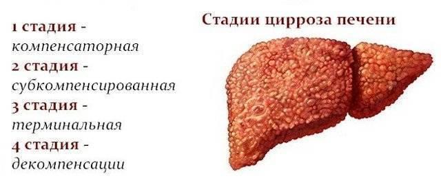 Сколько живут больные циррозом печени 4 степени по прогнозам