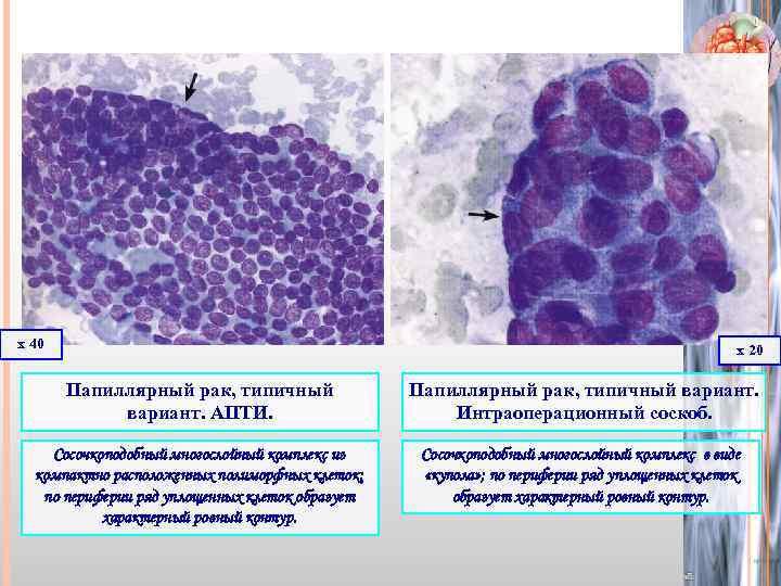 что такое папиллярный рак щитовидной железы