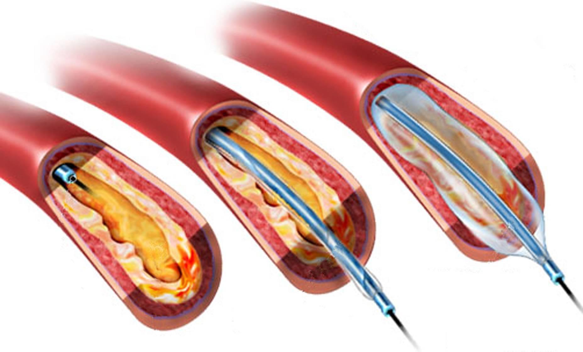 Баллонная ангиопластика, как и когда делают, недостатки