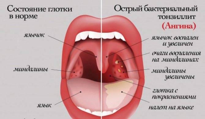 Комаровский – боль в горле, горло красное, что делать, если у ребенка рыхлое горло, лечение
